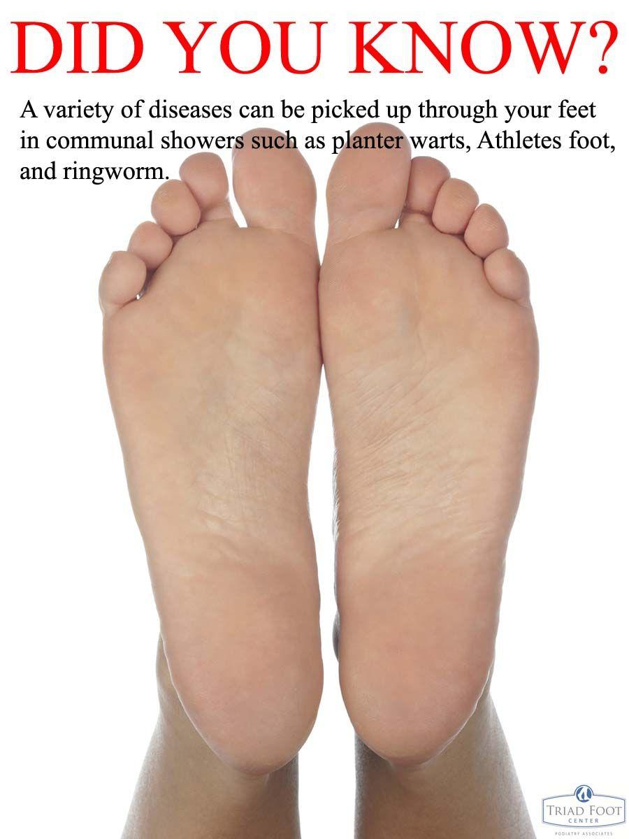 wart athlete s foot