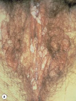 condilom multiplu al colului uterin