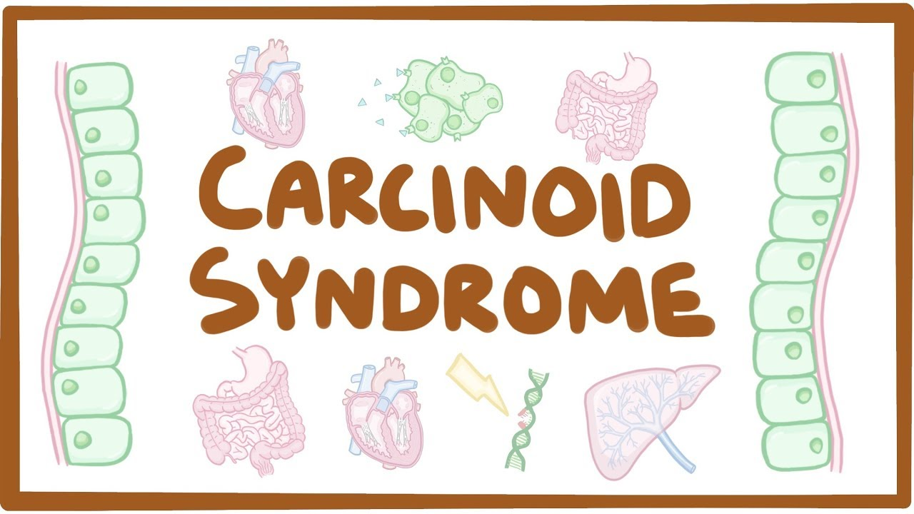 neuroendocrine cancer diarrhea papillomavirus est ce grave