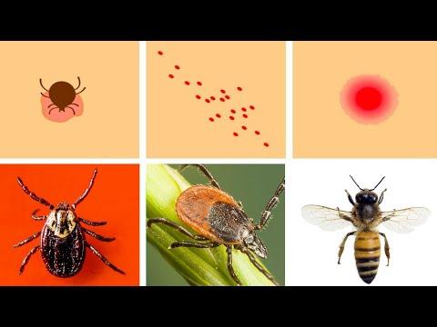 medicamente parazite pentru piele