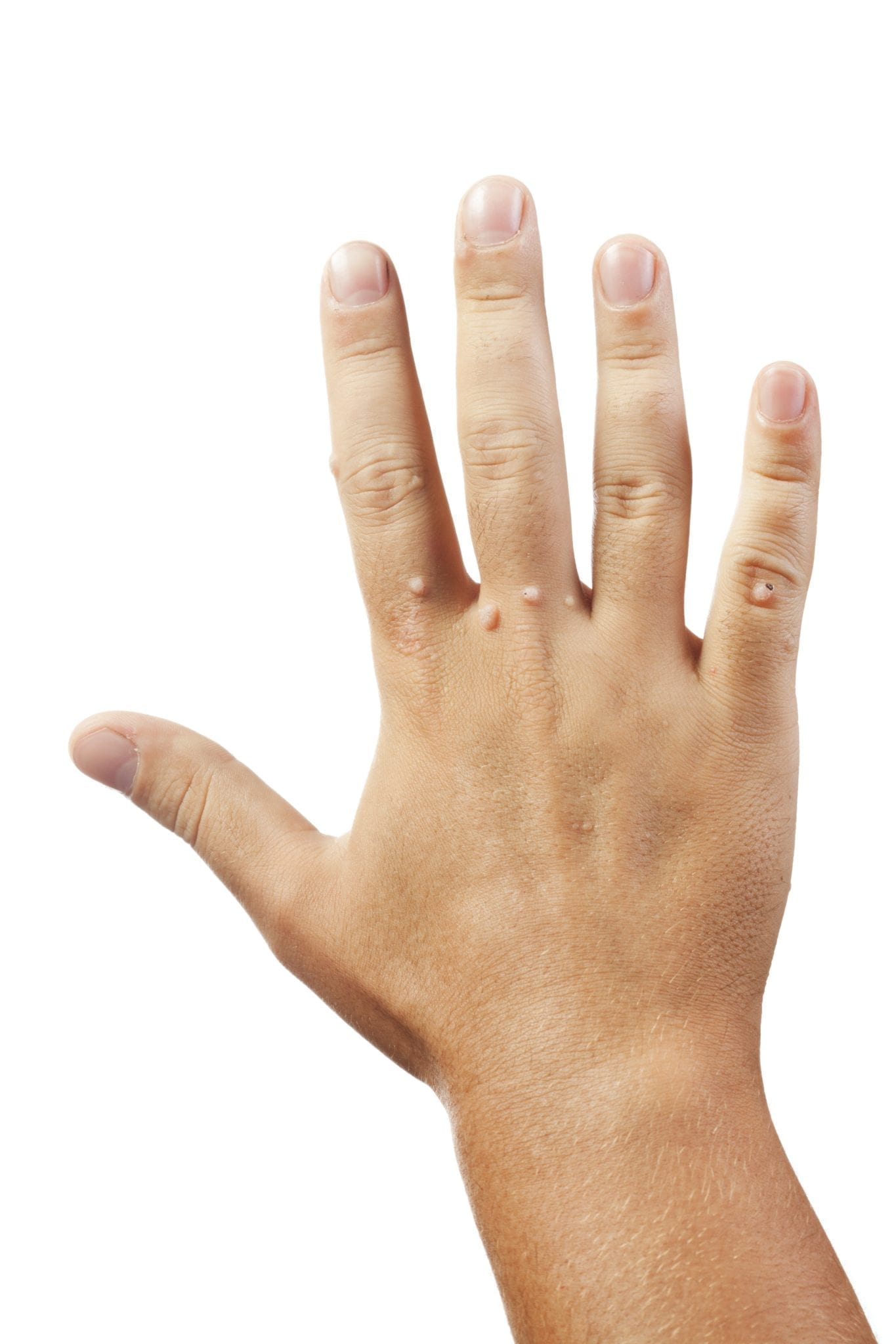 warts on hands pregnancy