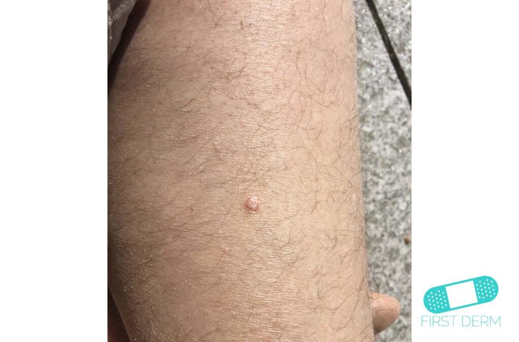 papilloma right thigh icd 10 condiloame la bărbați recenzii de tratament