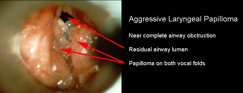 laryngeal papilloma speech therapy
