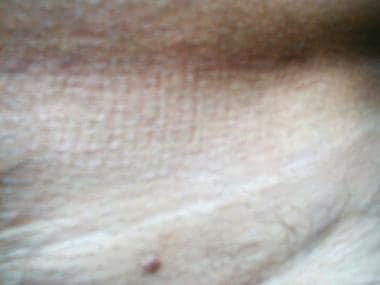 ce este condilomul vaginal