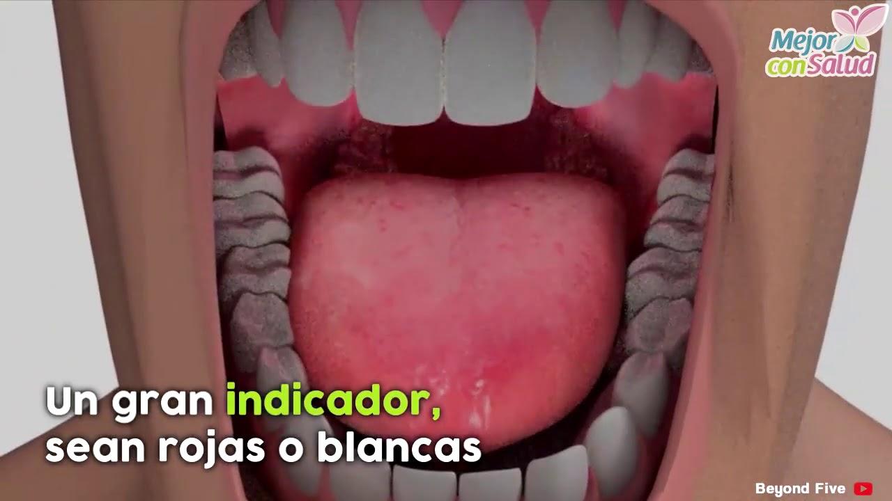Cancer bucal etiologia - Cancerul cavităţii bucale: simptome, complicaţii şi tratament
