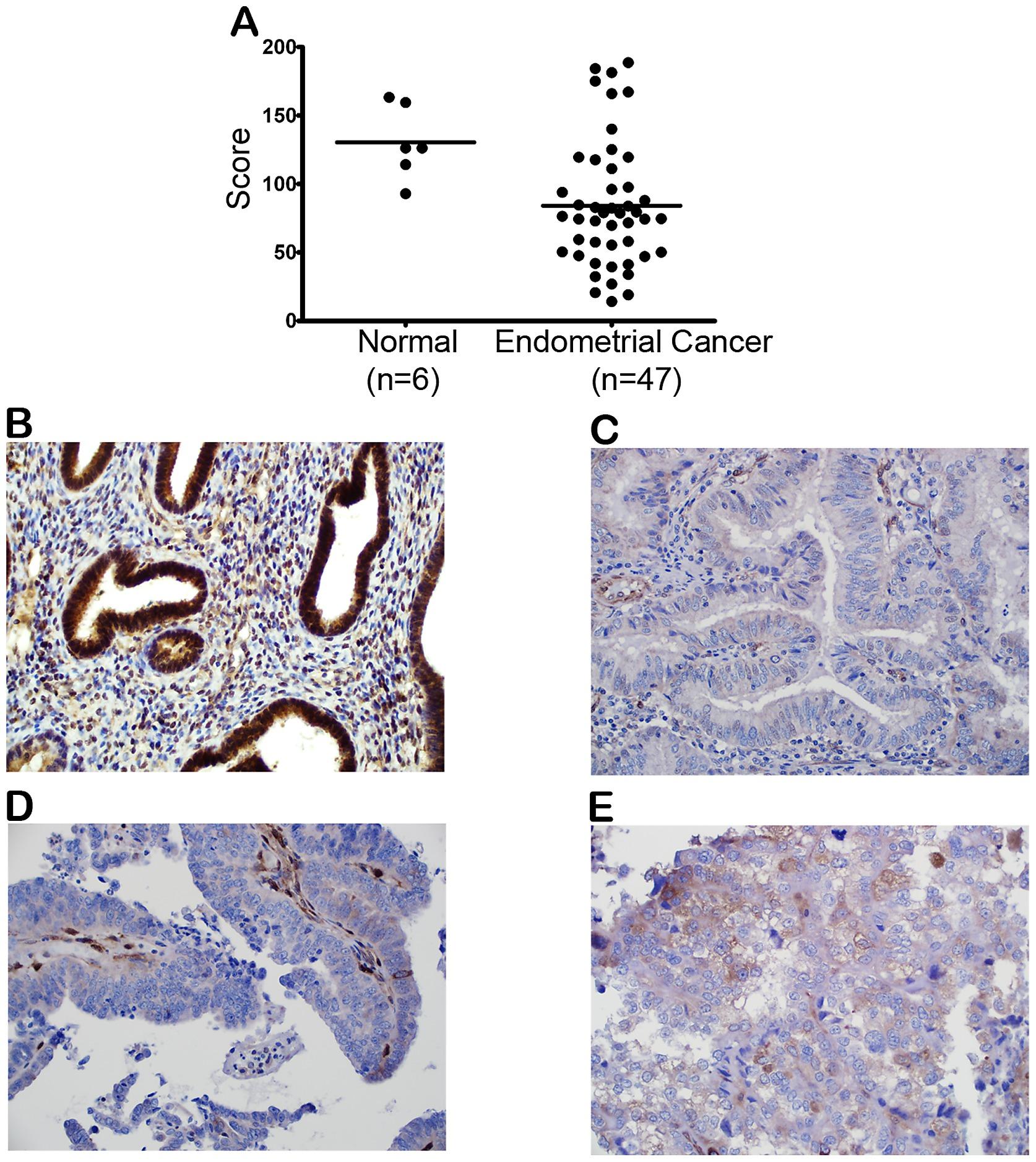 Endometrial cancer obesity Endometrial cancer and obesity, Rolul nutriţiei în cancer