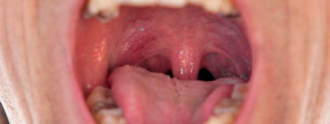 Papiloma en garganta o boca
