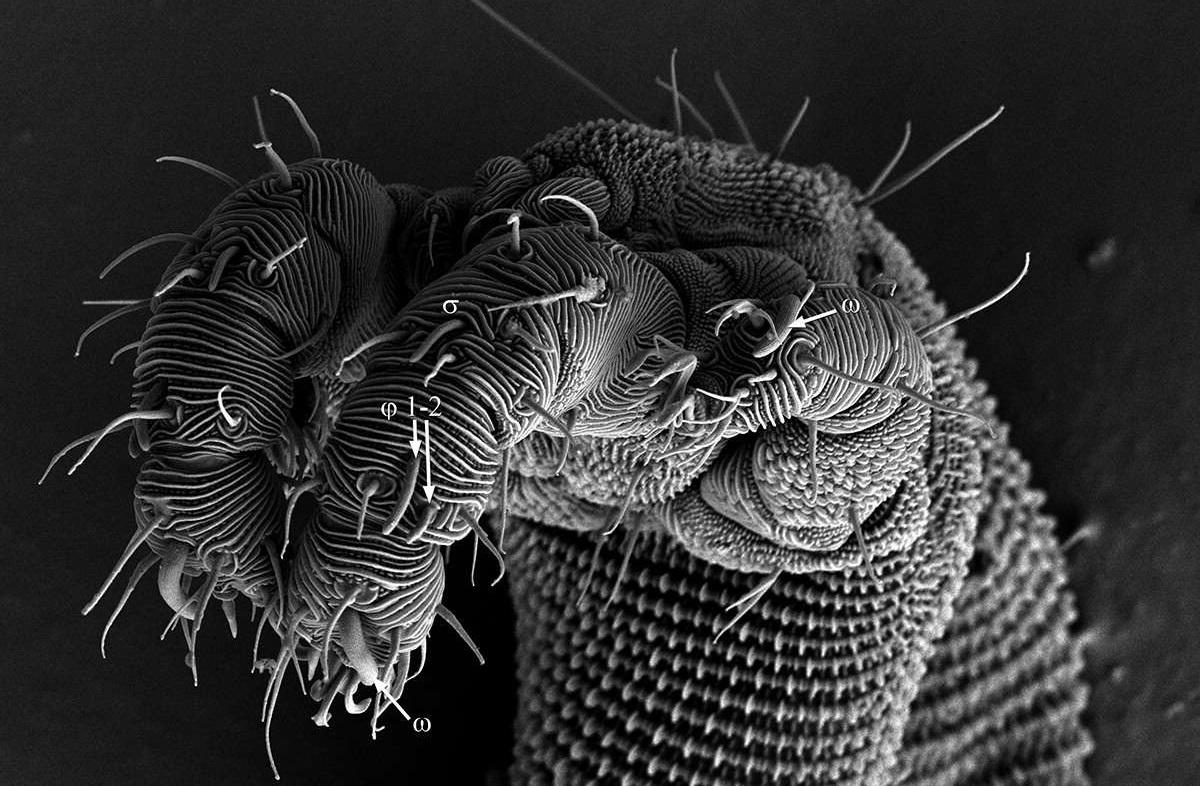 bacterii ochi hpv treatment dublin