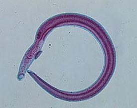 schistosomiasis haematobium)