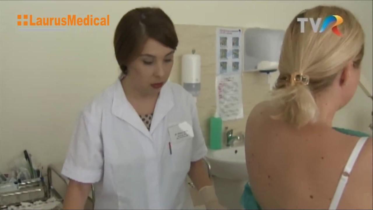 papiloame pe corp decât pentru a trata)