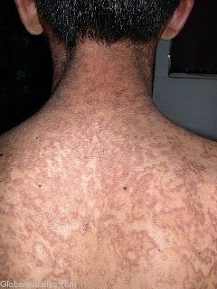 reticulated papillomatosis icd 10