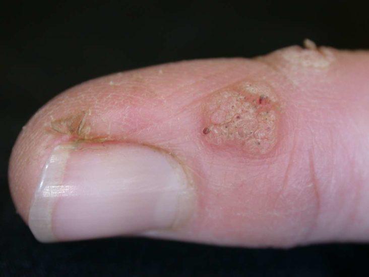 wart on foot is bleeding