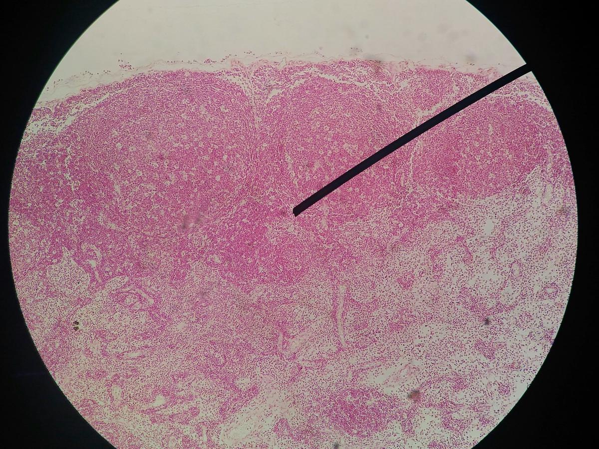 Papilloma virus nei gatti.