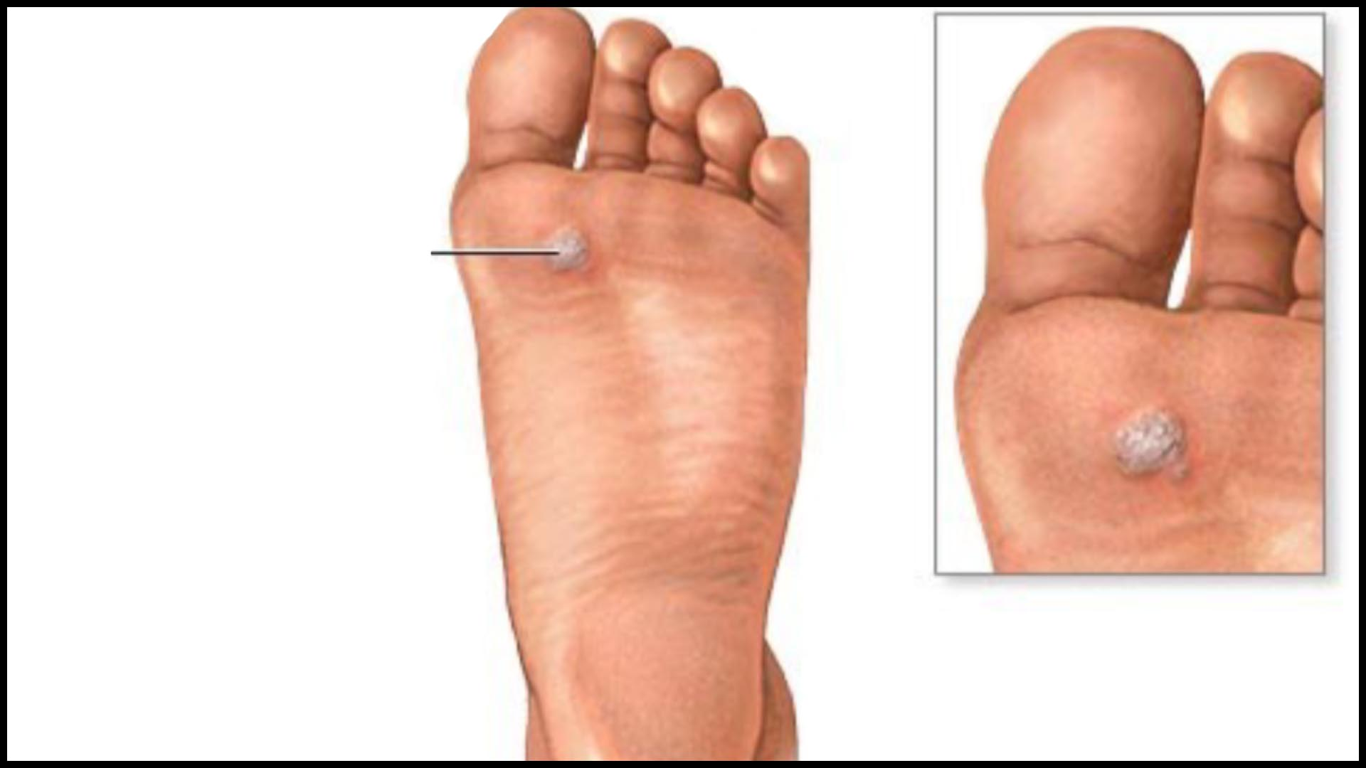 Squamous cell papilloma and verruca vulgaris. Squamous cell papilloma and verruca vulgaris