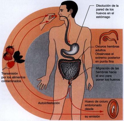 oxiuros dermatitis)
