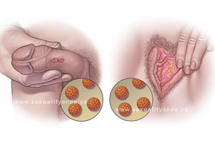 hpv en mujeres tratamiento)