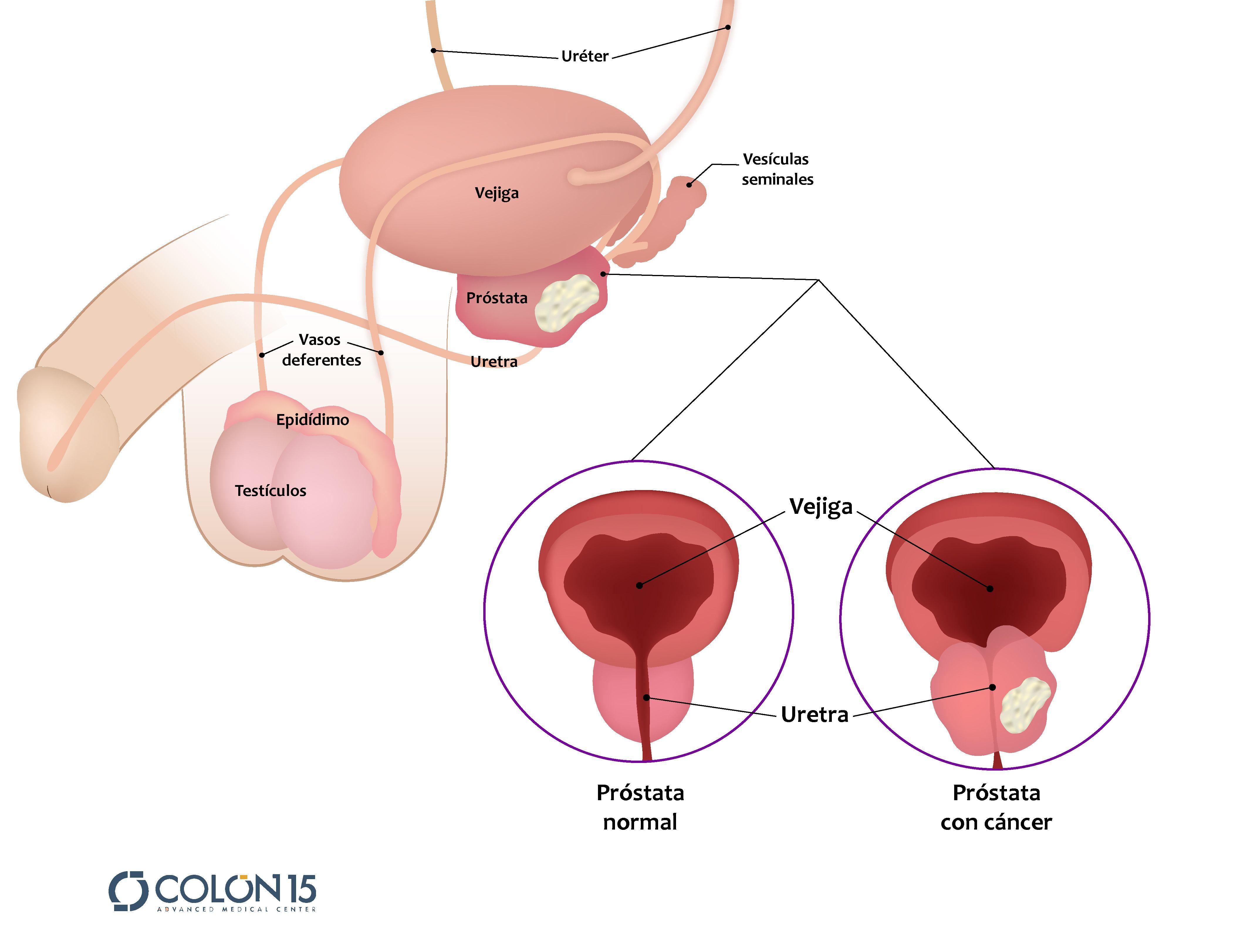 cancer a la prostata tratamiento