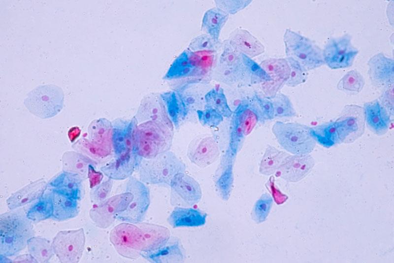 Colposcopia per papilloma virus, Virus de papiloma humano en una colposcopia