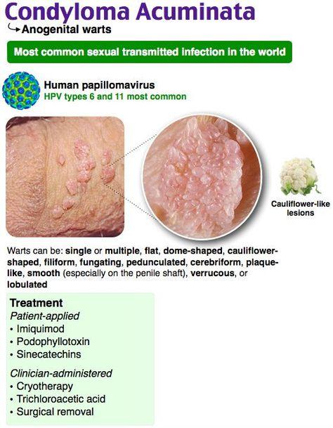 Skin papilloma etiology, Gastric cancer journal, Condyloma acuminatum etiology