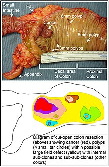 cancer epitelial de colon)