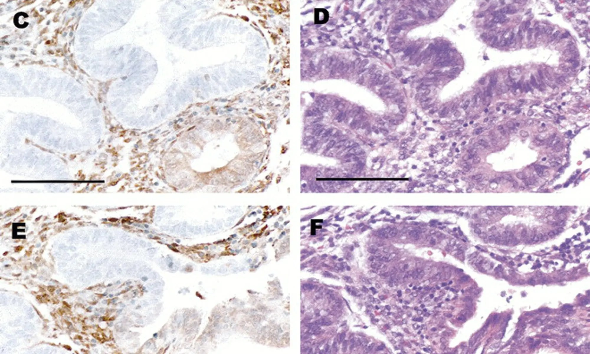 endometrial cancer pten
