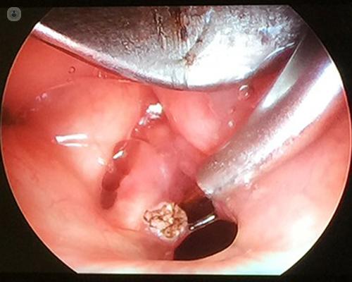 Respiratory papillomatosis cases, Laryngeal papillomatosis topical.