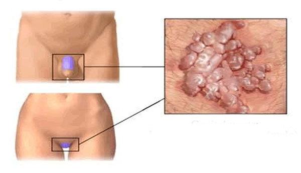 Human papilloma kezelese, Analiza giardia copii