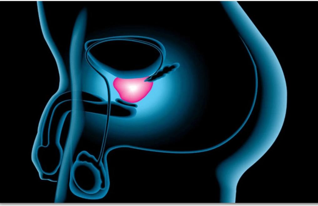 cancer de prostata biologia)