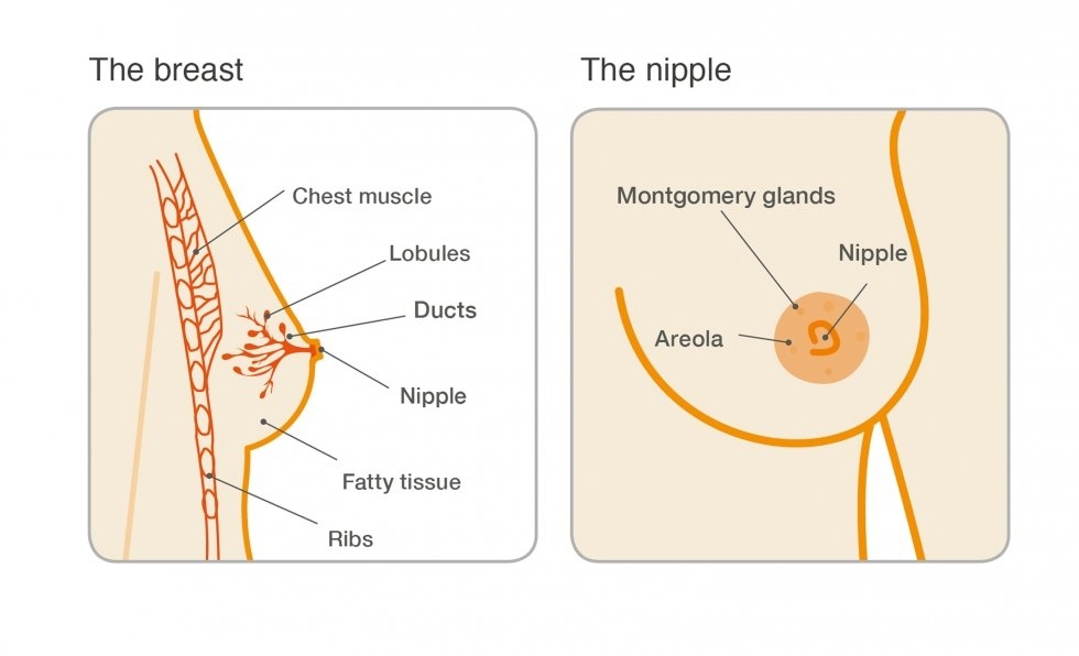 Can intraductal papilloma be cancerous, Surgical Breast Biopsy Options cancer genetic disorder