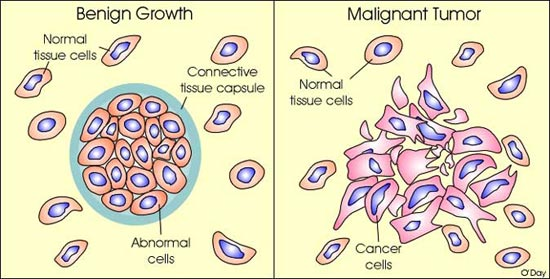 Cancer benign and malignant cells, Traducere