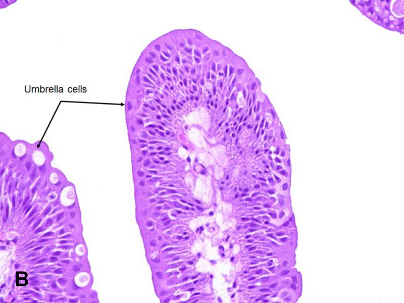 urothelial papilloma follow up)