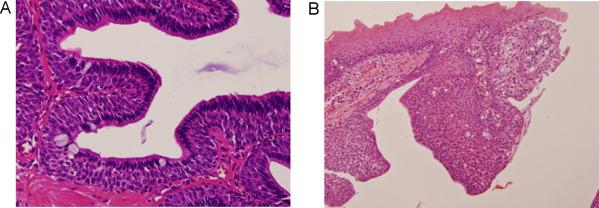 ductal papilloma of salivary gland)