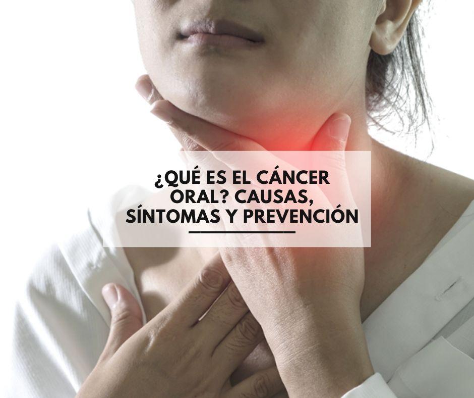 cancer bucal que es)
