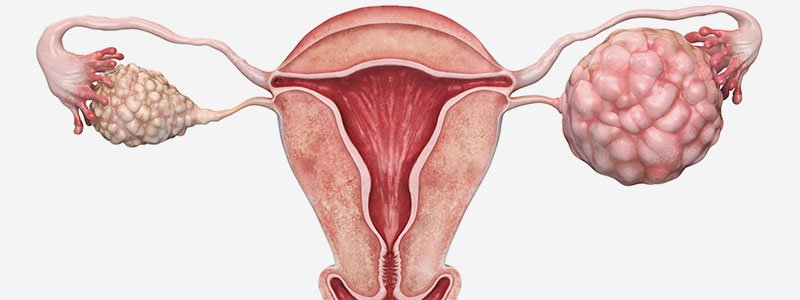 Ovarian cancer with pregnancy