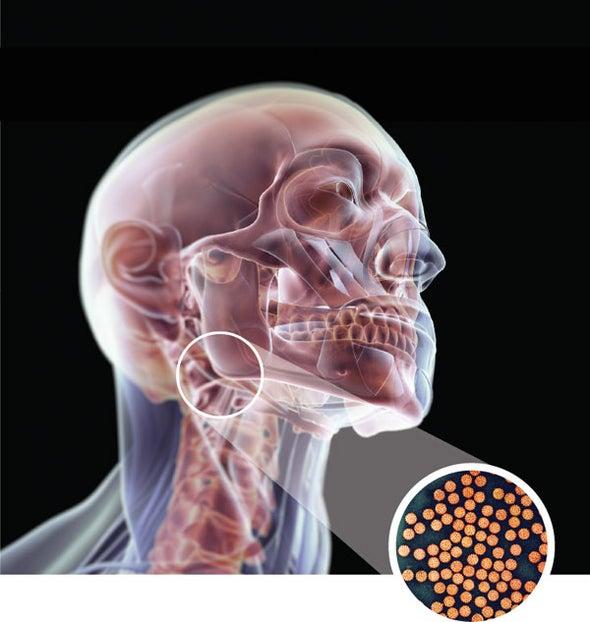 HPV - Wikipedia Human papillomavirus infection symptoms male