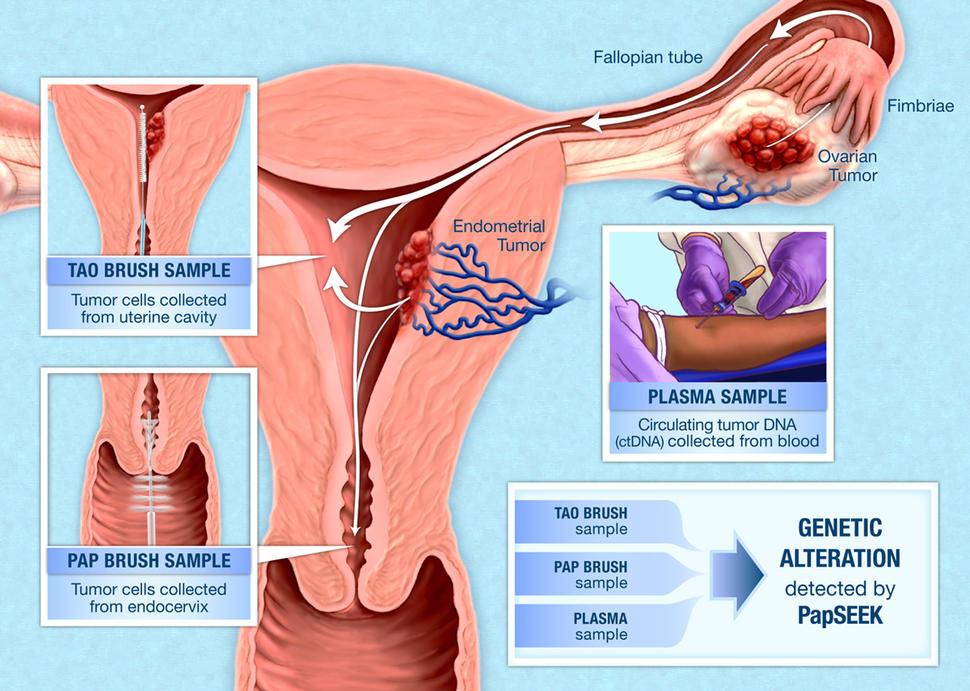 hpv virus treatment unguente pentru virusul papilom