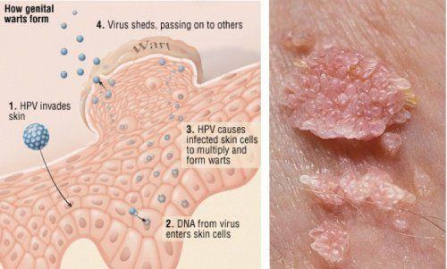 papillomavirus hpv)