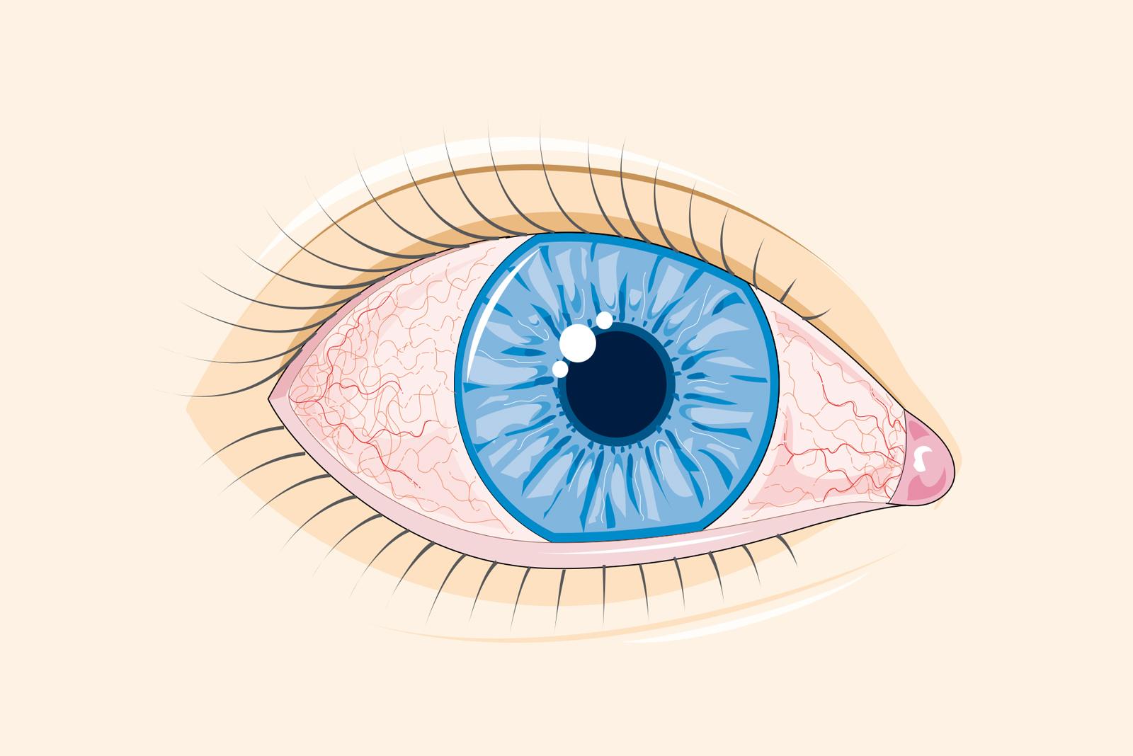 bacterii ochi