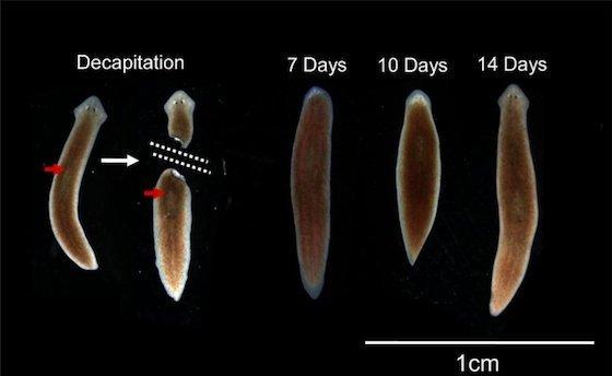 7 zile de curățare a colonului de detoxifiere preparate eficiente pentru helminți