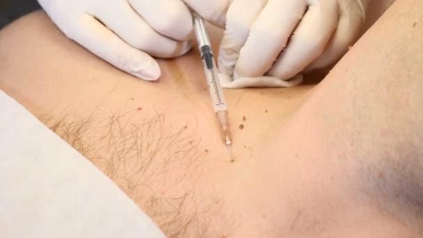 Papiloma pendulum - Tratament natural HPV, papilloma virus uman, How to remove papilloma on face