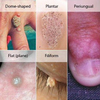 wart treatment recommendations)