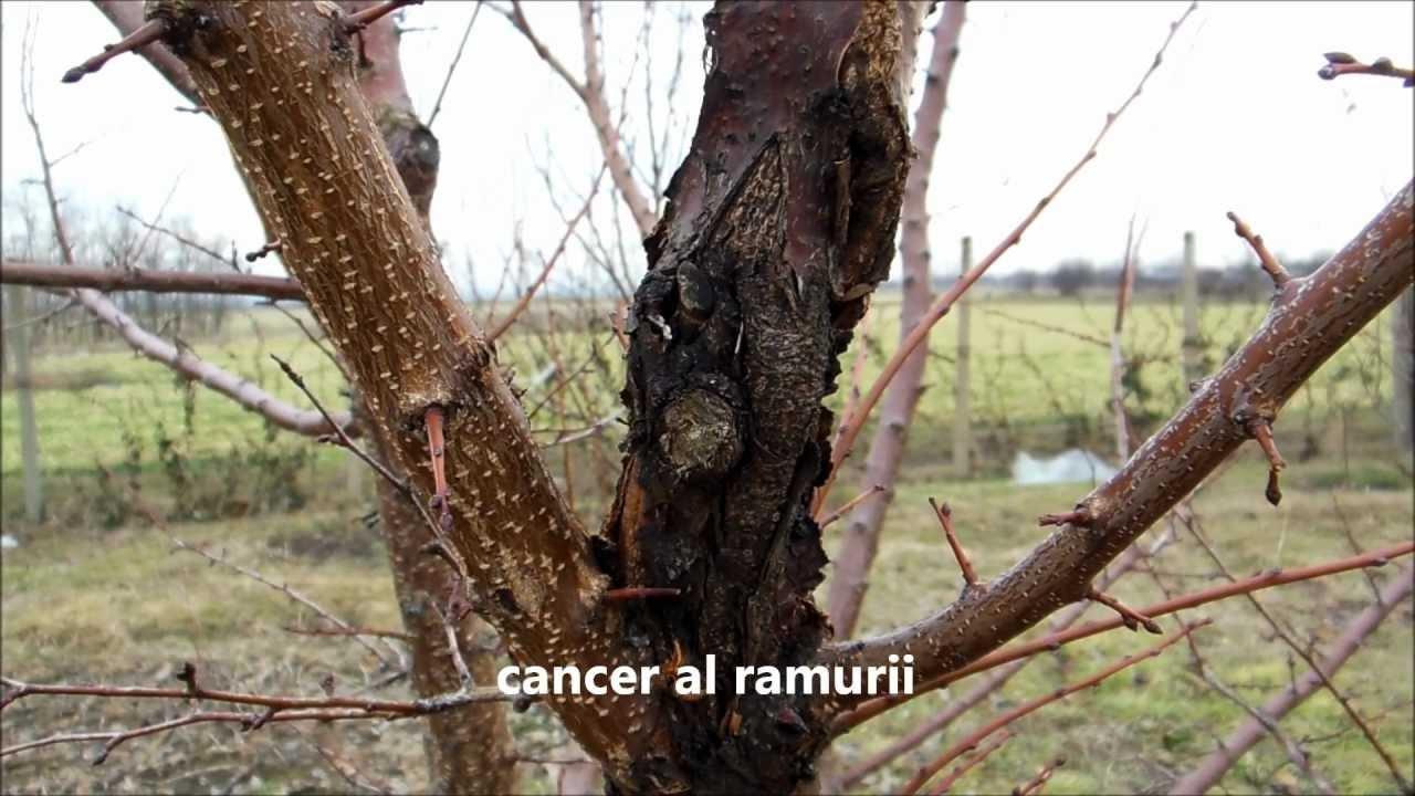 cancer la copaci
