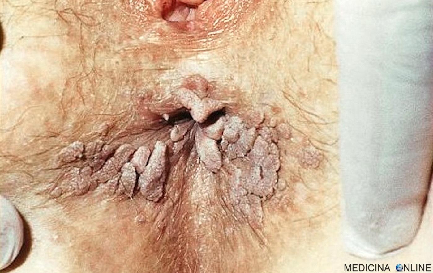 papilloma virus periodo di incubazione)