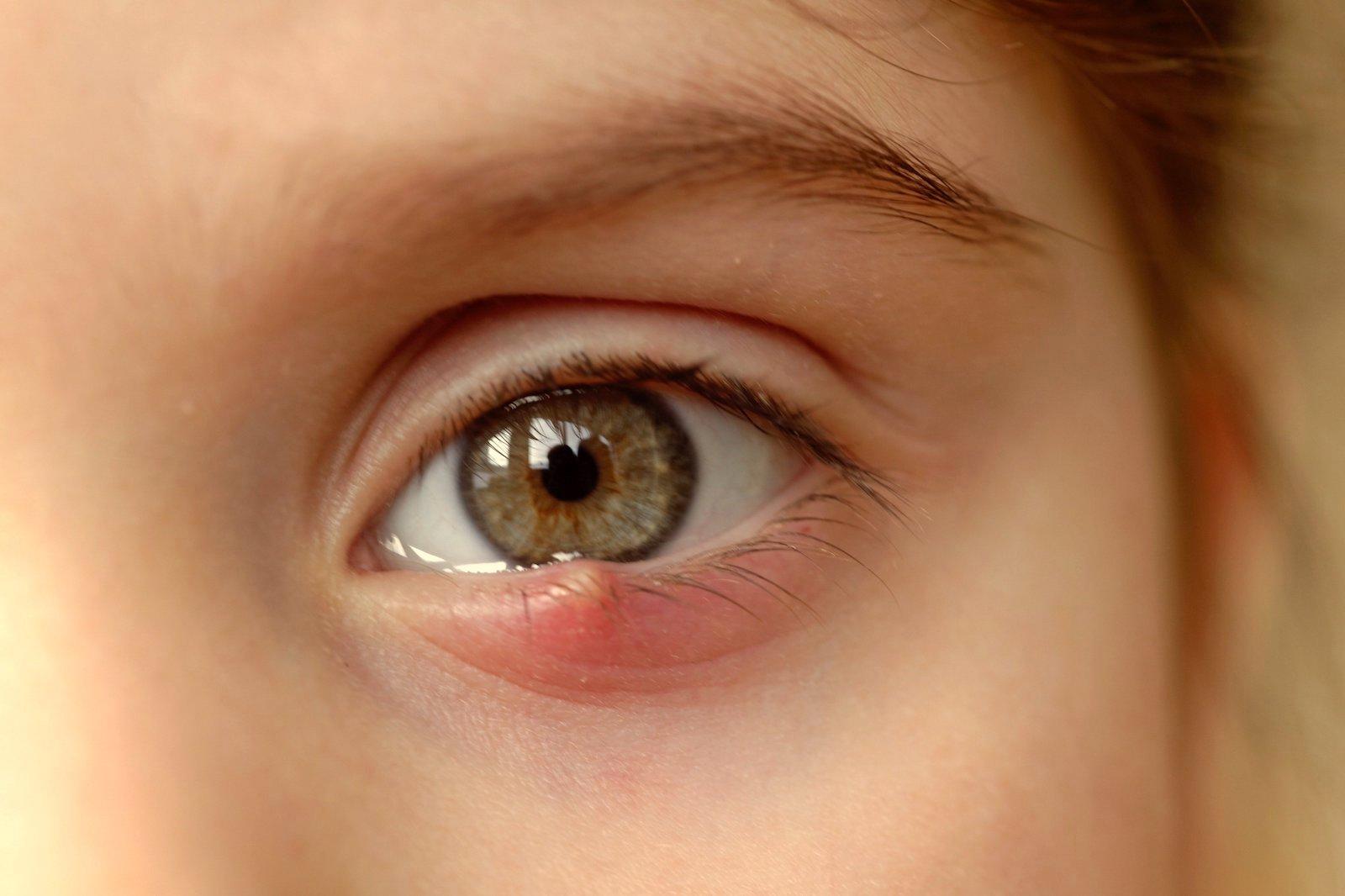 bacterii ochi paraziți din organism cum să identifice tratamentul