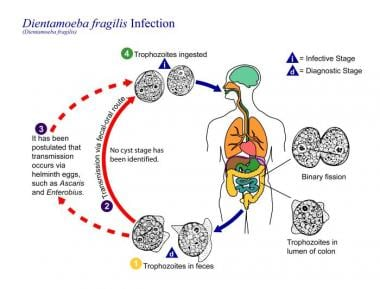 Enterobius vermicularis medscape. Enterobius vermicularis medscape