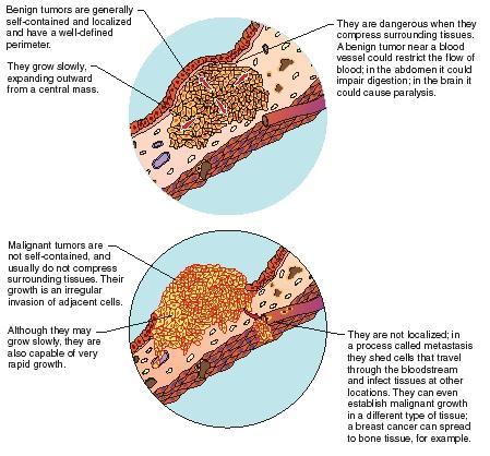 paraziti gliste hilak forte la copiii cu giardiază
