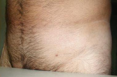 HPV genotipare în leziune/raclat (regiunea anogenitală și orală), Condilom în creștere
