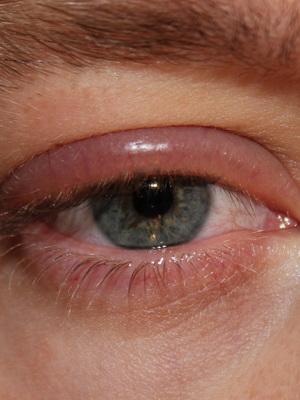 Simptomele helmintelor și tratamentul adulților