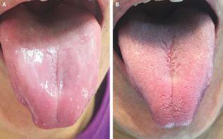 tongue papillae