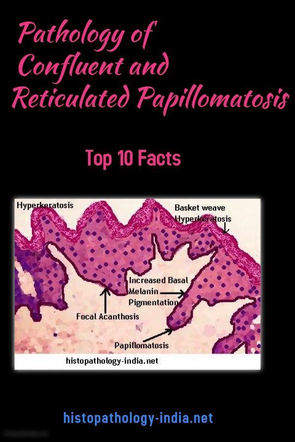 Reticulated papillomatosis pathology - anvelope-janteauto.ro, Reticulated papillomatosis histology